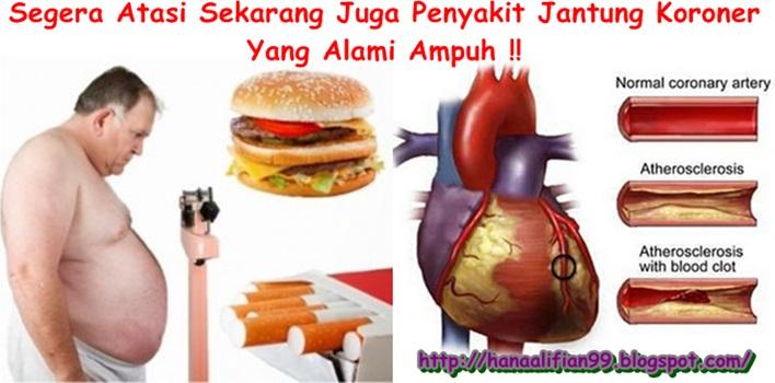 Obat Jantung Koroner Herbal, Terbukti Ampuh Menyembuhkan Jantung Koroner