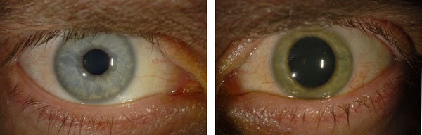 ebola eye pictures