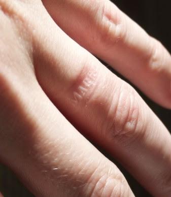 Anti-Cheating Wedding Ring