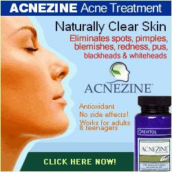 acne skin care routine