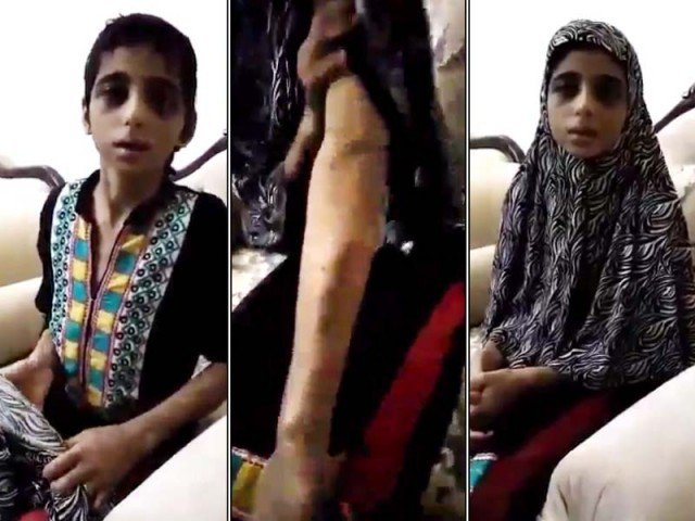 Medical Report Confirms About Brutal Torture On 11-Year Old Kinza