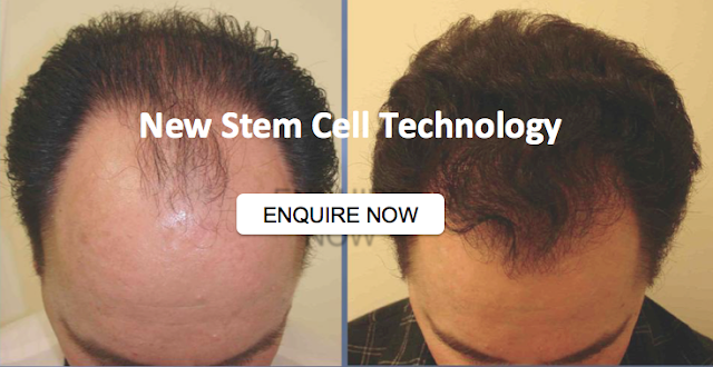 Stem Cell Hair Loss Treatment