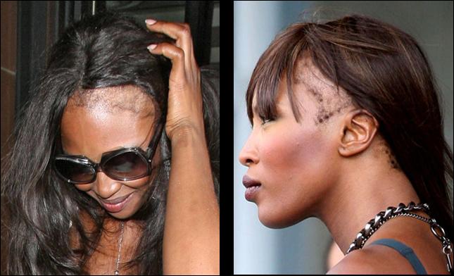 Perte de cheveux chez la femme regime