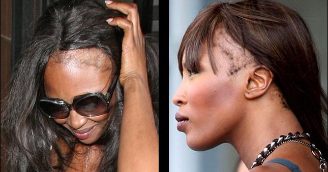 La Chute De Cheveux Chez La Femme L Alop 233 Cie F 233 Minine