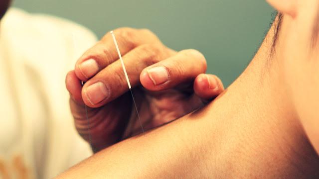 Manfaat Terapi Akupuntur