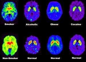 scans of addicts