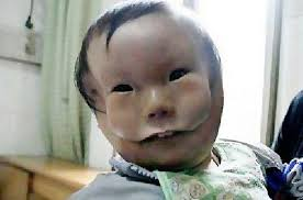 طفل صيني بوجهين يصدم الأطباء