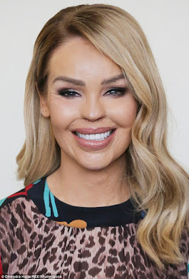 katie piper face to face