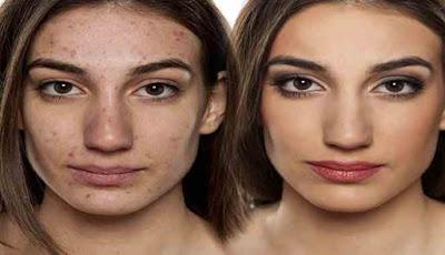 Menyembunyikan jerawat dengan makeup