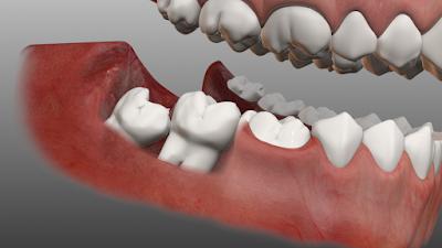 Sâu răng có nên nhổ không?