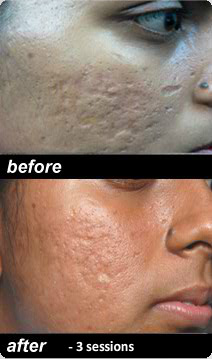 Co2 Fractional Laser Resurfacing