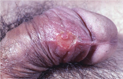 Initial genital herpes with a single large penile ulcer mimicking chancroid.