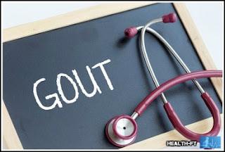 Gout Patient