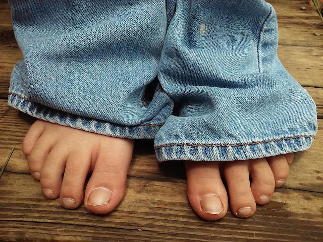 Nail Fungus, Toenail Fungus, How To Get Rid Of Nail Fungus, Home Remedies For Nail Fungus, Nail Fungus Treatment, Nail Fungus Home Remedies, How To Treat Nail Fungus, How To Cure Nail Fungus, Nail Fungus Remedies, Remedies For Nail Fungus, Cure Nail Fungus, Treatment For Nail Fungus, Best Nail Fungus Treatment, Nail Fungus Relief, How To Get Relief From Nail Fungus, Relief From Nail Fungus, How To Get Rid Of Nail Fungus Fast,