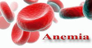 Anemia: sintomi e diagnosi
