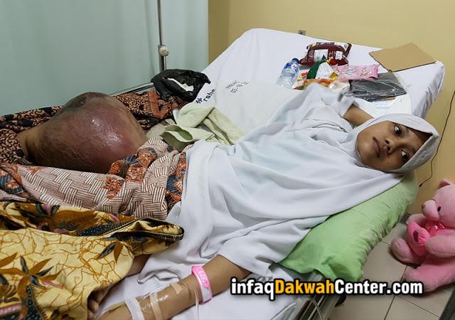 Demi Rasa Kemanusiaan.. Gadis Ini Menderita Kanker Tulang Ganas Di Pahanya dan Harus Diamputasi. Berikut VIdeonya