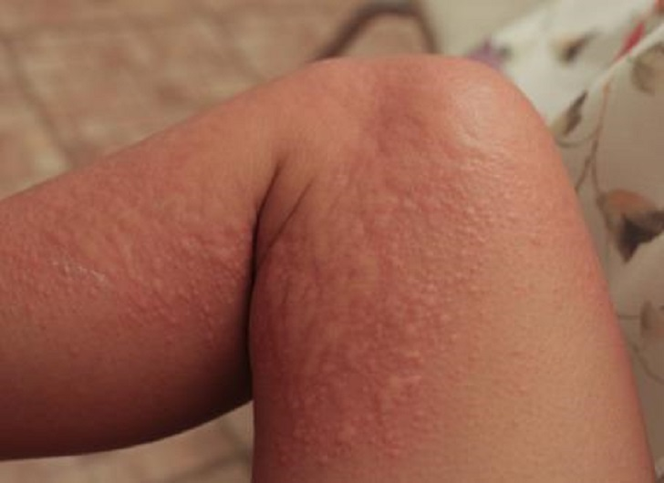 Skin rash on the leg