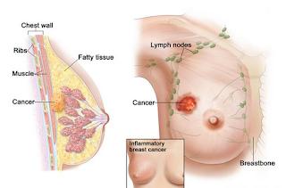 Penyebab alami adanya kanker, Cara Alami Mengatasi Benjolan Kanker Payudara, Cara Herbal Mengatasi Kanker Payudara