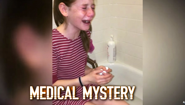 Savannah Fulkerson, suffering from Erythropoietic Porphyry or EPP