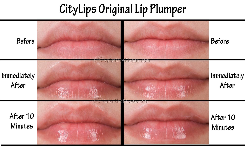 Lip Plumpers 49