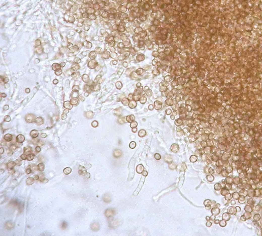 round spores of Chaenotheca brunneola