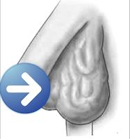 gejala varikokel testis grade 1, 2 dan 3