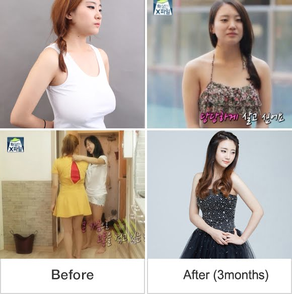 짱이뻐! - The Best Breast Surgery Saved Me From Pain
