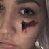 Cantora é mordida por aranha e fica com buraco no rosto