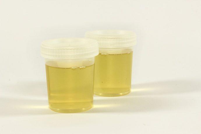 purina acido urico alimentos el apio es malo para la gota urea y acido urico en sangre