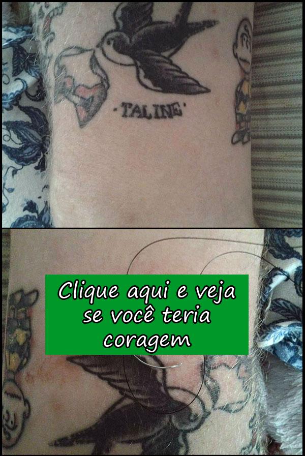 http://www.naointendo.com.br/fotos/metodo-macho-de-remover-uma-tatuagem