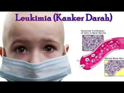 Obat Kanker Darah Leukimia Pada Anak