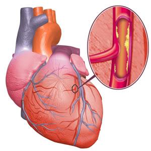 Mengobati Jantung Koroner dengan ICP Capsule