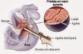 como é feito o exame de biopsia da prostata