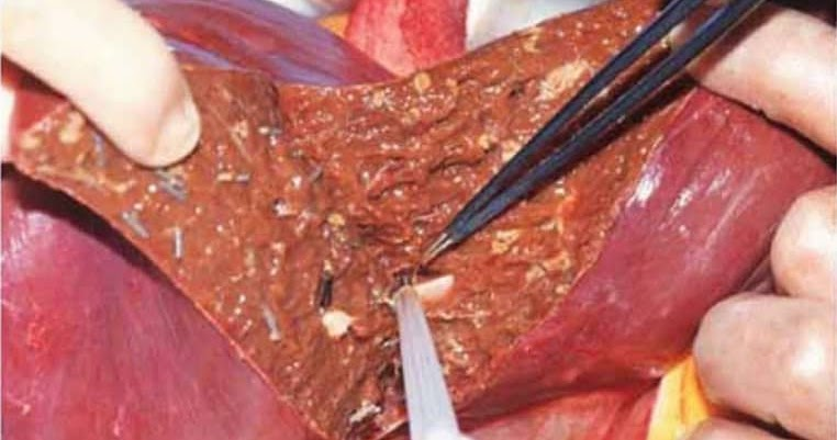 Stage 4 Liver Cancer Life Expectancy Without Treatment Canceroz