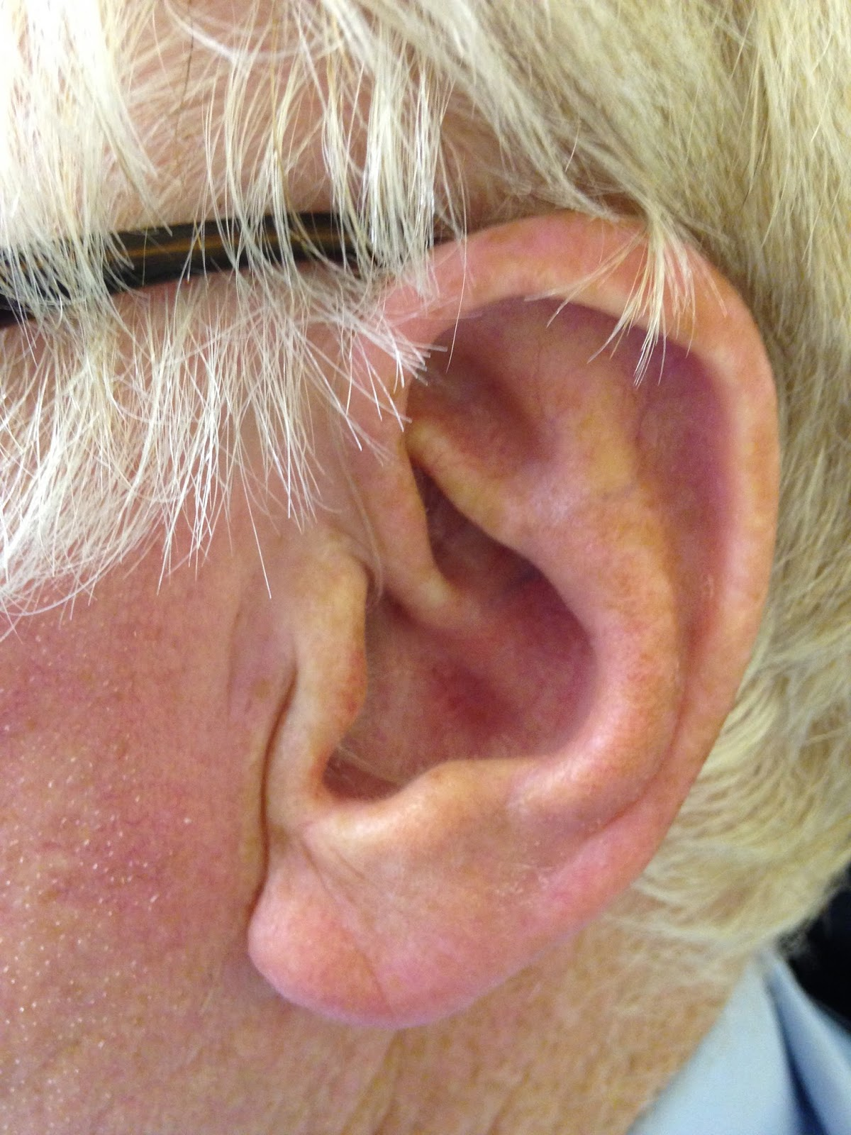 Wear Your Receiver In The Ear Hearing Aid Correctly Good