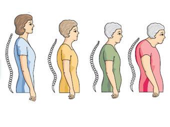 bolest kostiju osteoporoza