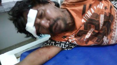 Pedestre alcoolizado é atropelado por motociclista em Vargem Grande
