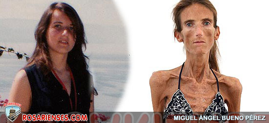 Extreme anorexic who is appalled to be a role model | Rosarienses, Villa del Rosario