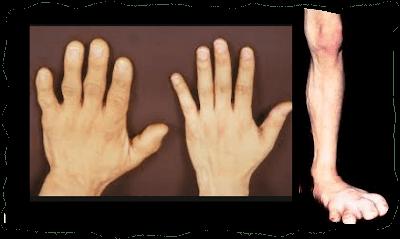الأكروميجالى Acromegaly
