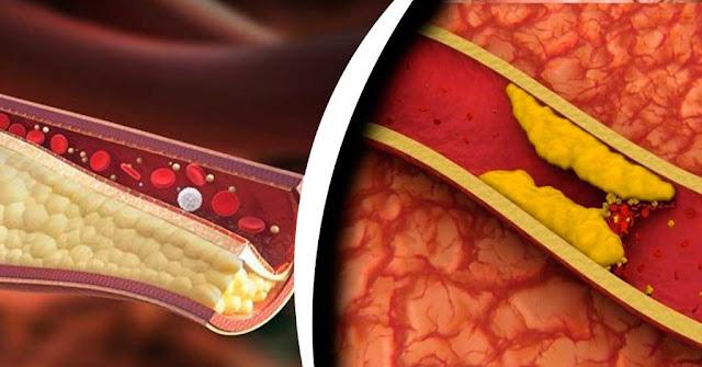 Depura tus arterias obstruidas y previene un posible ataque al corazón utilizando este remedio natural