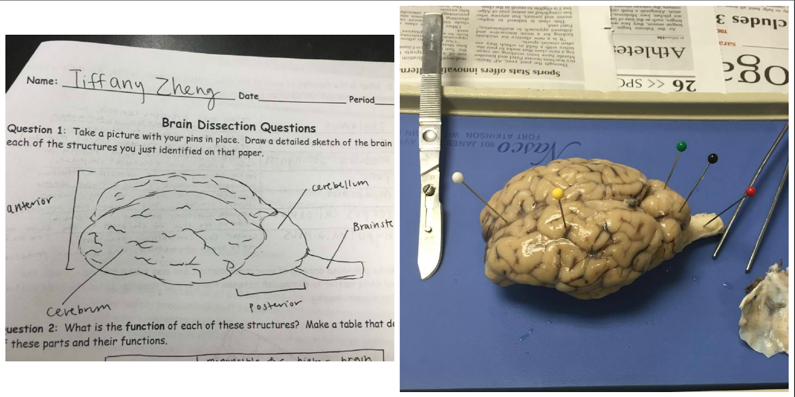 Anatomy And Physiology Brain Dissection Lab Report