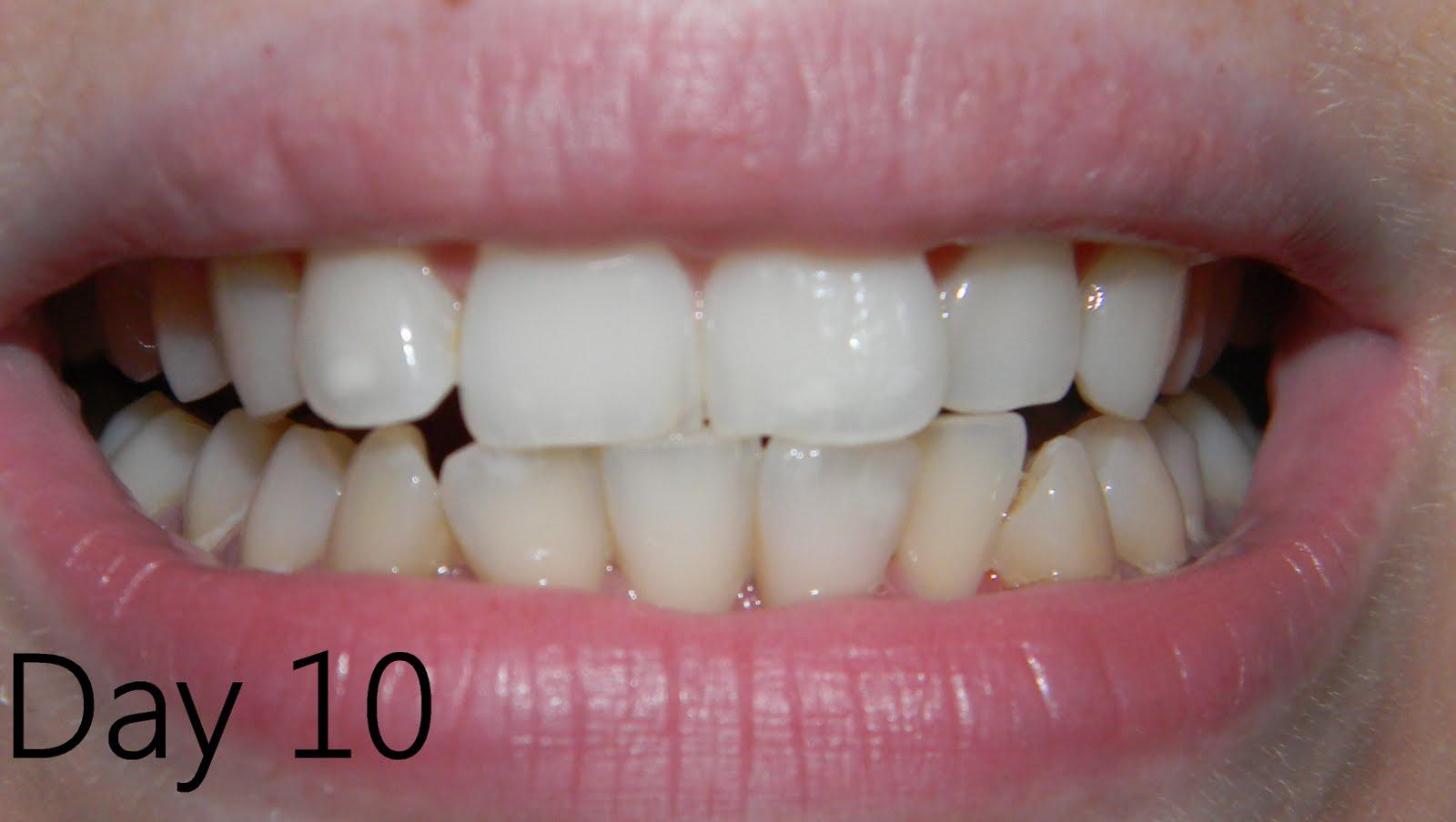 Pearlie Teeth Review