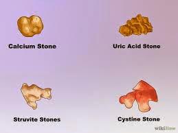 Άμμος και πέτρες