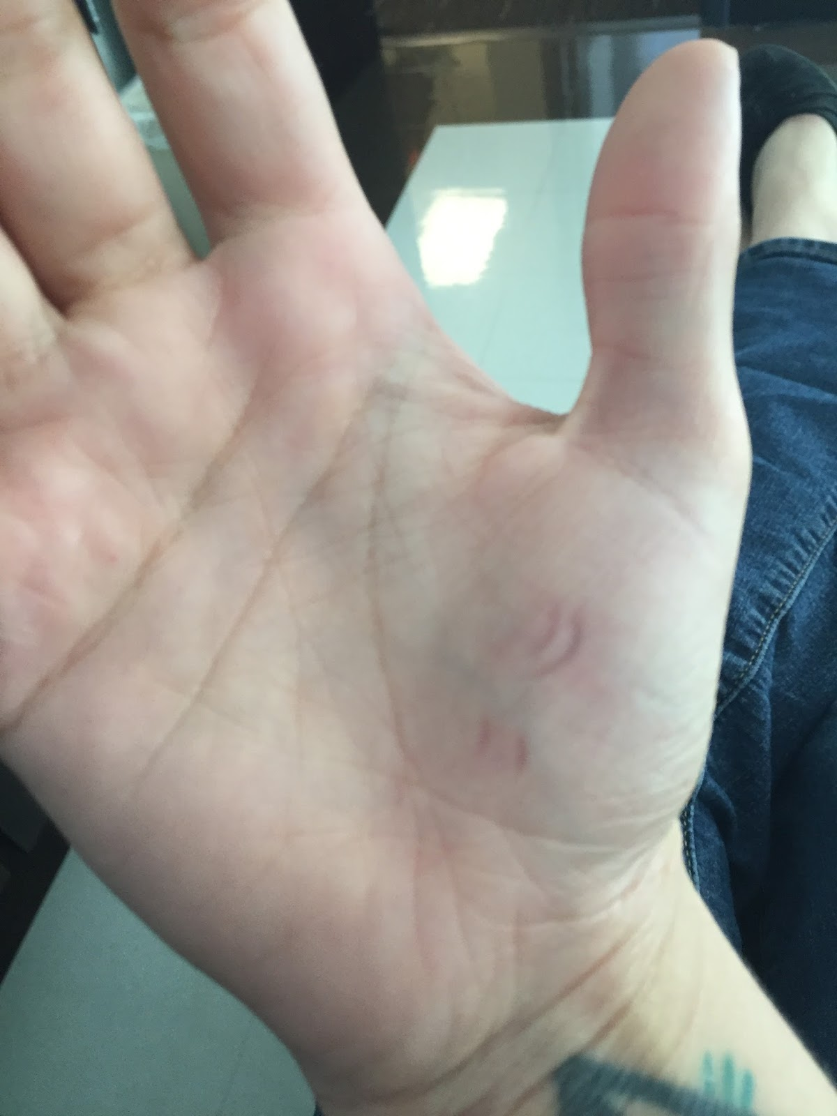 And Here I Am Waiting For My Next Injection As Well The Marks Made While Digging Nails Into Hand Because Of Pain