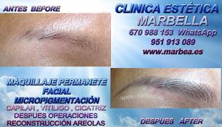 micropigmentyación Estepona, clínica estetica propone los mejor precio para micropigmentyación, maquillaje permanente de cejas en Estepona, y marbella
