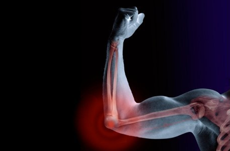 Obat Herbal Retak Tulang Siku
