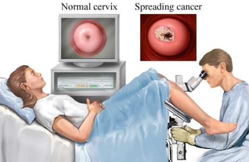This Efforts To Prevent And Detect Cervical Cancer