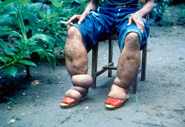 10 of the strangest diseases in the world