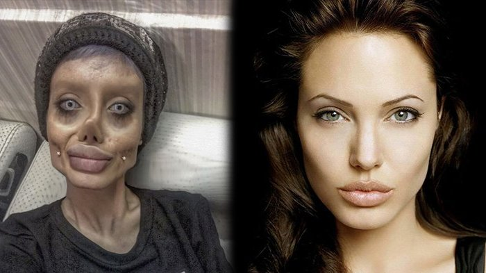 Wanita Ini Jalani 50 Operasi Plastik Agar Bisa Mirip Angelina Jolie, Hasilnya Malah Kaya Mirip Zombie. Foto Aslinya Malah Lebih Cantik Lho!