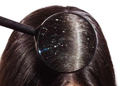 5 Causes of Dandruff